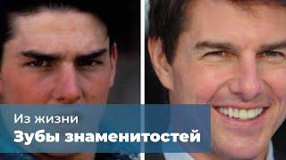Зубы знаменитостей до и после стоматолога