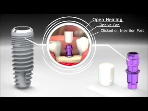 Dental Implant SICvantage max: Conical Innovation