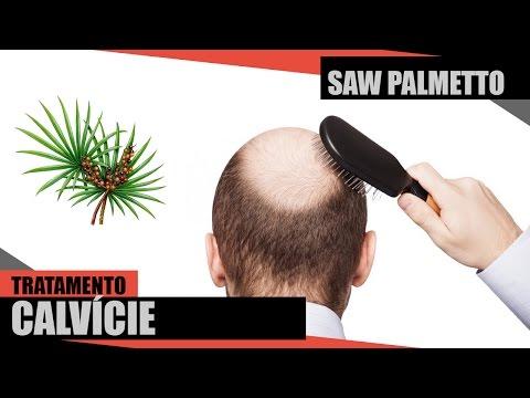 Saw Palmetto - Tratamento para Calvície ( ALOPÉCIA ANDROGÊNICA E ALOPÉCIA AREATA )