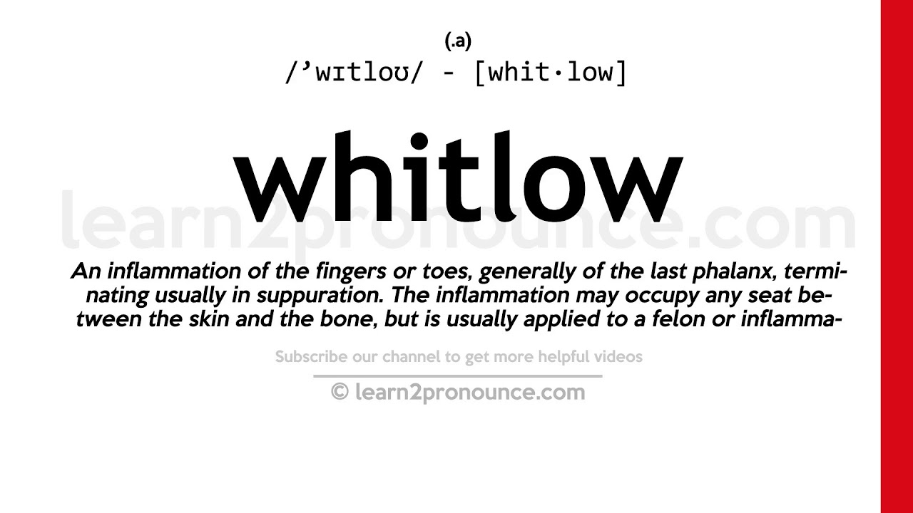 How to pronounce Whitlow | English pronunciation