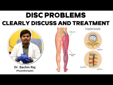 Disc Problems Clearly Discuss and Treatment : Dr Sachin Raj - Physiotherapist