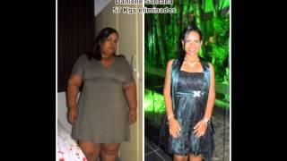 Meu emagrecimento - 2 anos de gastroplastia