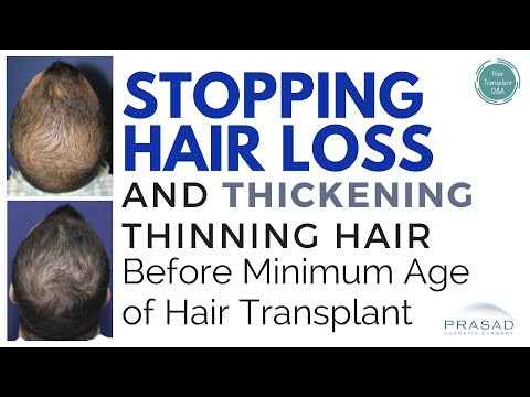 How to Stop Hair Loss Before the Minimum Age for Hair Transplant, and Even Forgo Transplantation