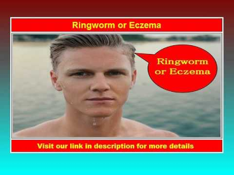 Ringworm or Eczema – See Now!