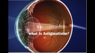 what is astigmatism/ cylindrical power? (Hindi)