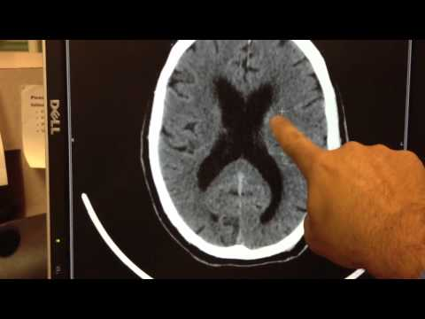 Case: Hemorrhagic Stroke