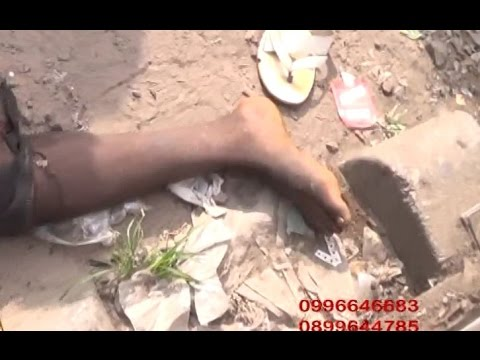 KINSHASA: UN HOMME MORCELÉ  PAR UN TRAIN EN PLEINE VILLE