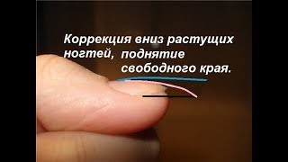 Коррекция вниз растущих ногтей, поднятие свободного края, вниз растущие ногти.