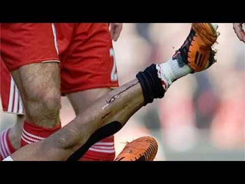 Luis Nani Injury vs Liverpool (Jamie Carragher BRUTAL Tackle)