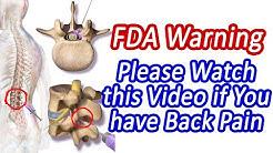 hqdefault - Dexamethasone Lower Back Pain