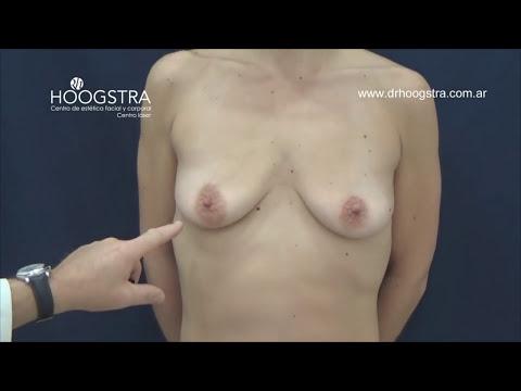 Colocación de prótesis mamarias - Corrección de hernia umbilical (16059)