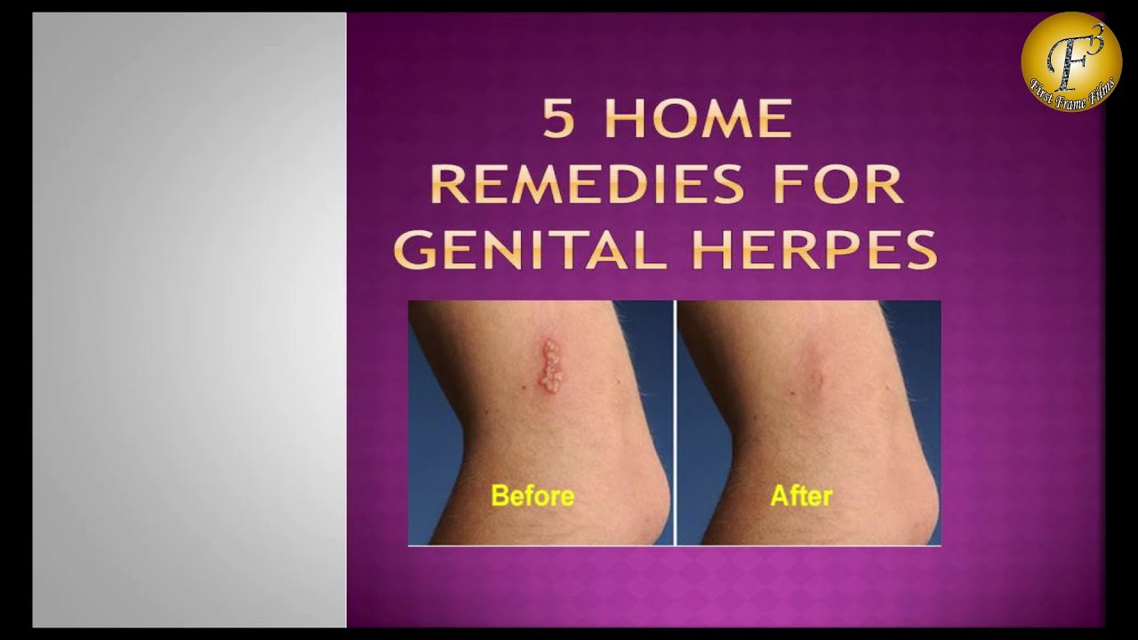 How to treat genital herpes 97