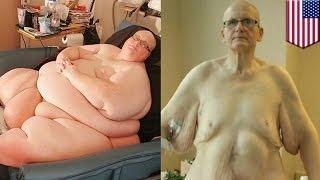 Самый толстый в мире мужчина похудел на 27 кг... кожи