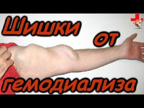 Как предотвратить шишки на руке от гемодиализа