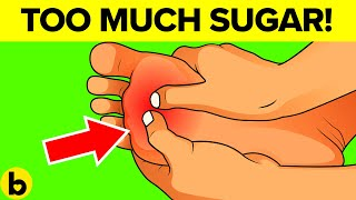 Signs that you are eating too much sugar. As far as nutrition goes,...