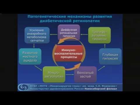 Черных Д.В. Современные возможности хирургического лечения пролиферативной диабетической ретинопатии