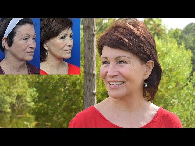 Terry's Facelift Transformation Story