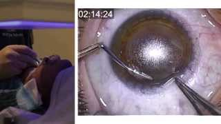 London Vision Clinic | ReLEx SMILE | Live laser eye surgery | Professor Dan Reinstein