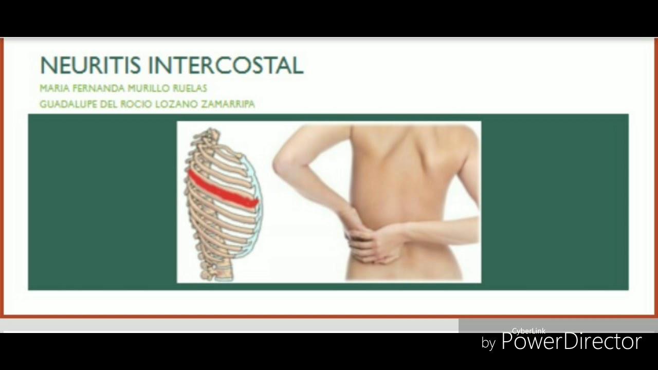 tratamiento para neuritis intercostal izquierda