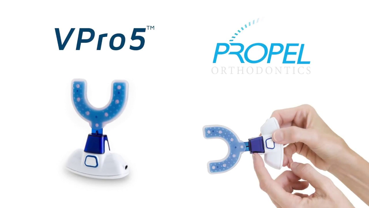 Propel VPro5 For Invisalign - How It Works!