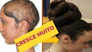 Use muito CABELO vai CRESCER MUITO RÁPIDO \ Combate a queda o cabelo cresce muito mais rápido!