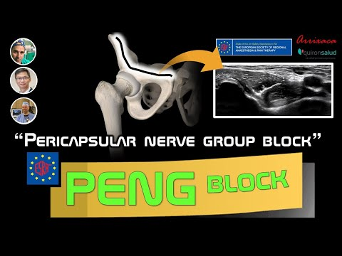 PERICAPSULAR NERVE GROUP BLOCK (PENG BLOCK). OUR CURRENT UNDERSTANDING.