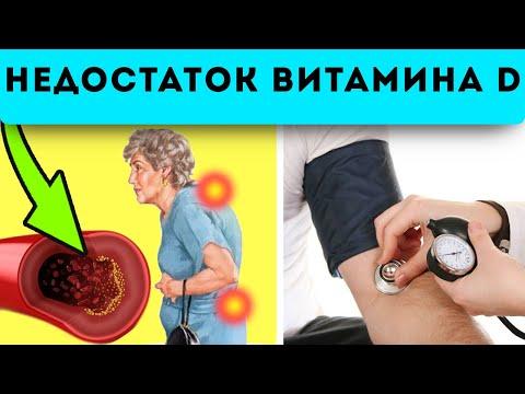 СРОЧНО! Важные признаки дефицита витамина D