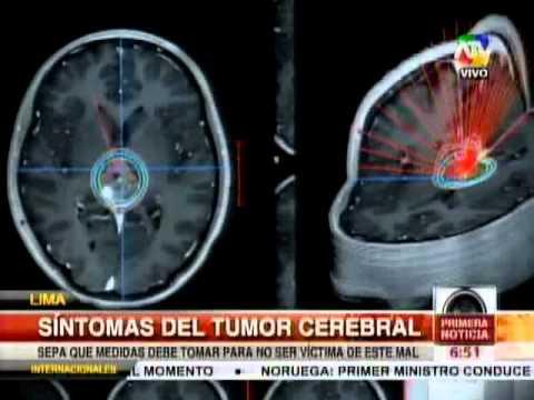 La hernia de la columna vertebral los síntomas y el tratamiento del vídeo