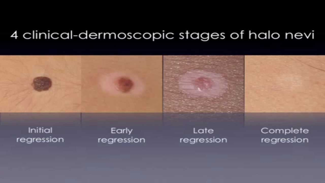 Halo Nevus - White Circles On Skin TREATMENT