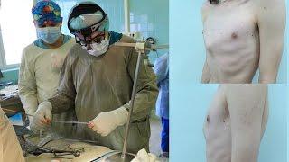 Операция Абрамсона (лечение килевидной грудной клетки)(http://pectuscarinatum.ru/operative-therapy/ Операция Абрамсона (хирургическое лечение килевидной грудной клетки). Килевидную..., 2016-02-03T14:53:10.000Z)