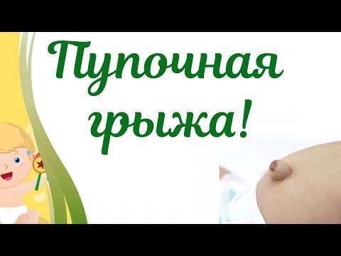 Пупочная грыжа у новорожденного! Симптомы пупочной грыжи у детей. Пластырь или монета,что помогает?