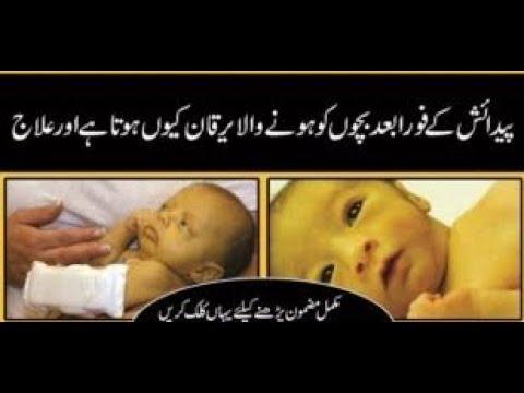 Nozaida Bachoon Ka Yarkan Newborn Baby Jaundice Treatment