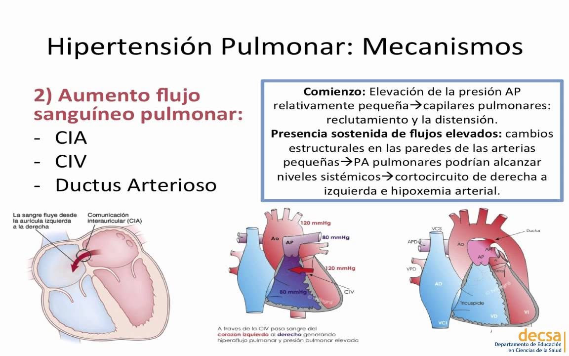Hipertension pulmonar.mp4 - YouTube