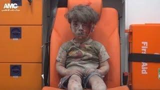 Syrian Boy Omran Daqneesh is  back in Aleppo