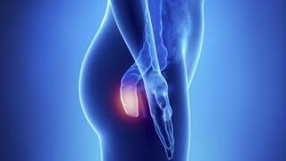 ⭐️❤️5 sintomas do câncer anal, a doença silenciosa que você precisa conhecer
