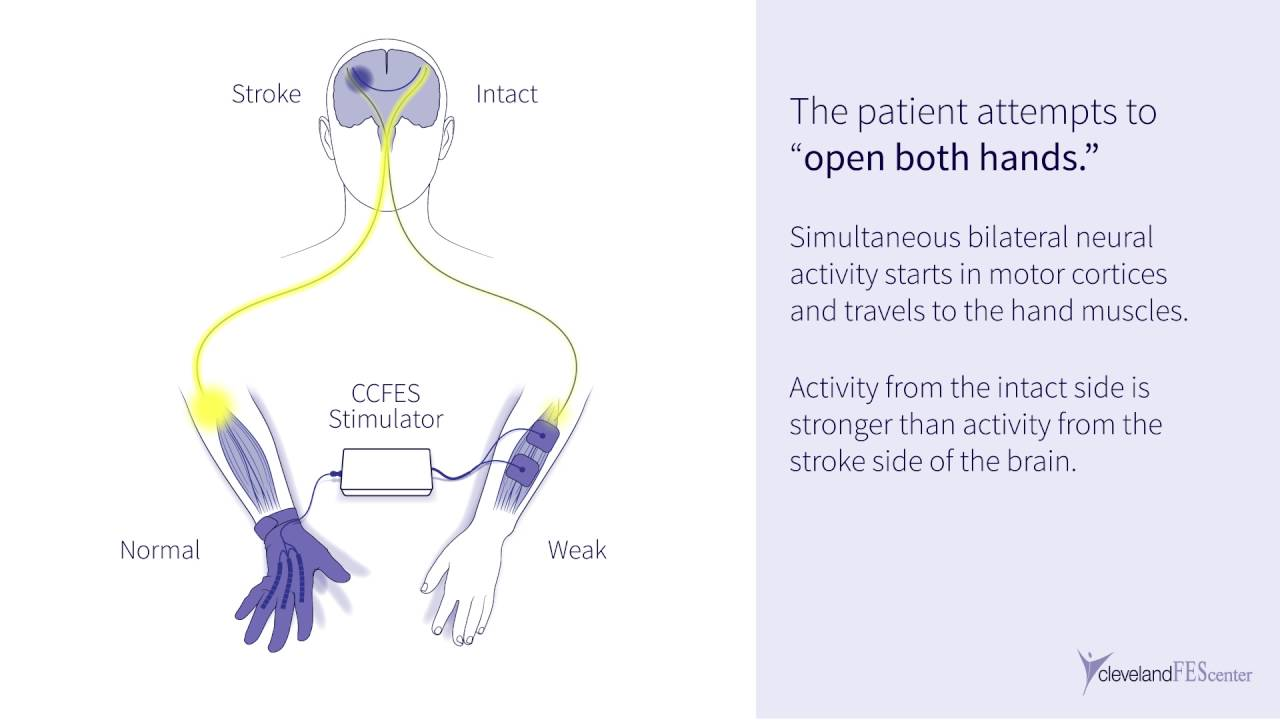 New Post Stroke Electrical Stimulation Therapy