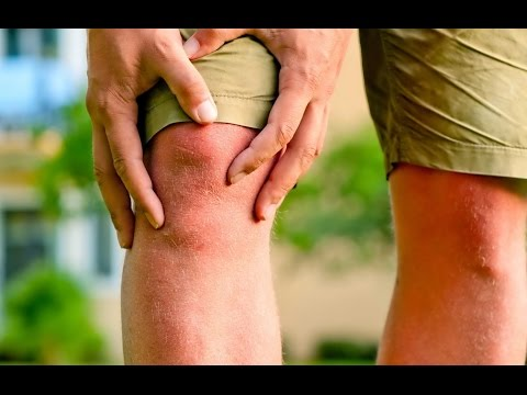 Остеохондроз - лечение в домашних условиях народными
