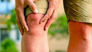 Болят суставы рук и ног что делать ! Как лечить боли в суставах -часть 1(Если у вас болят суставы, как их лечить, как восстановить прежнюю работоспособность и жить без боли. Как..., 2015-05-11T03:37:58.000Z)