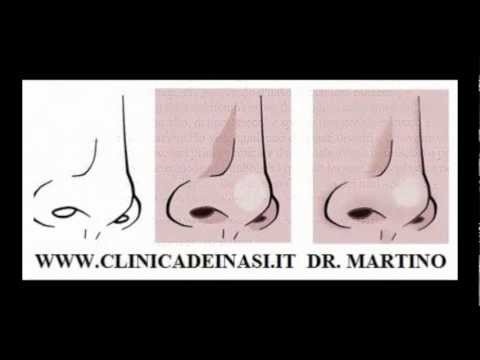 RINOPLASTICA ROMA :ATTENZIONE ALLA RINOPLASTICA CON I FILLER (NON CHIRURGICA) DR MARTINO from YouTube · Duration:  46 seconds