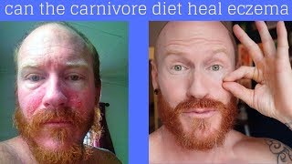 can the CARNIVORE DIET cure ECZEMA / DERMATITIS?