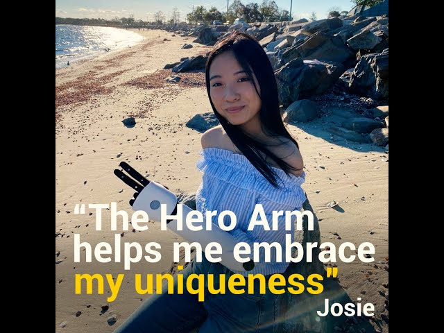 Josie's Hero Arm Story -