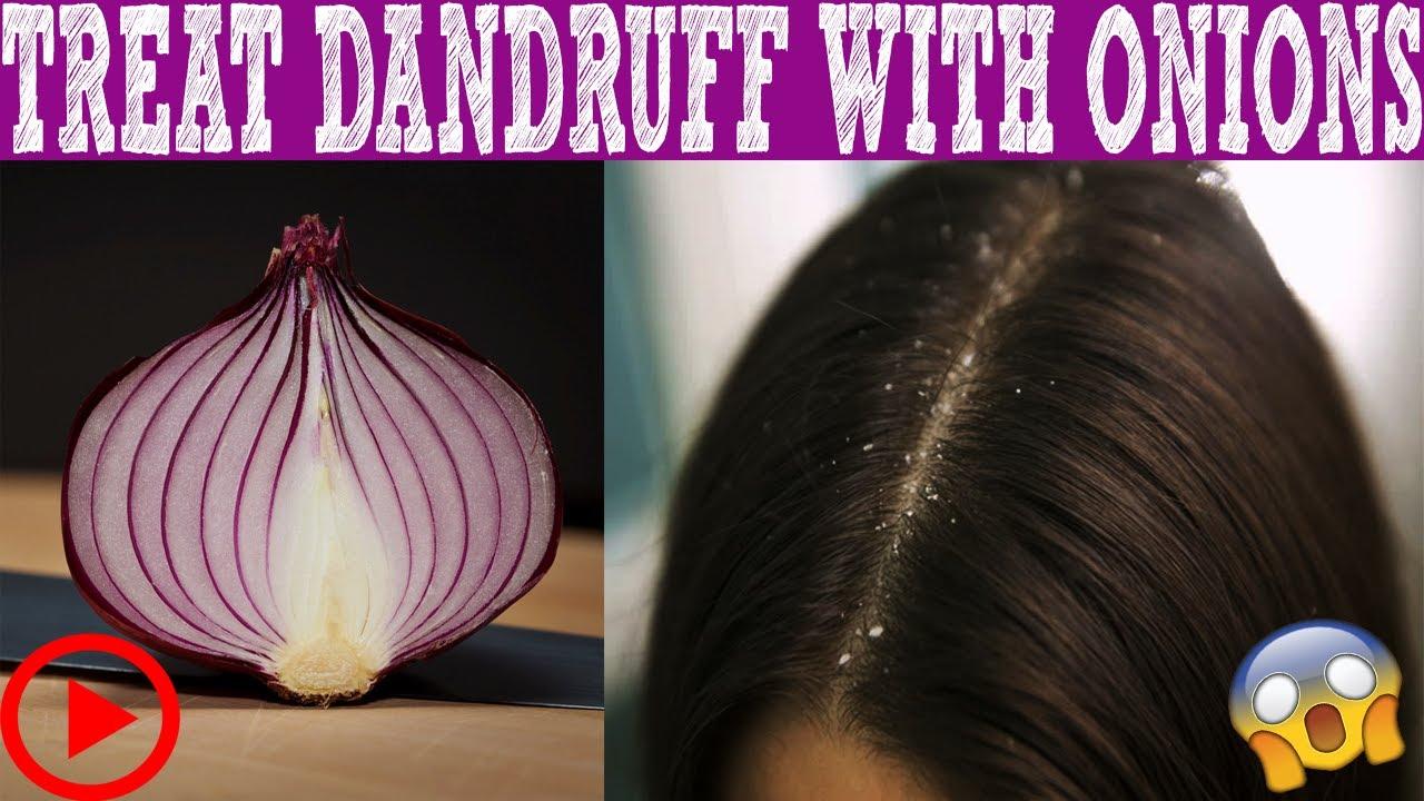 Kết quả hình ảnh cho How Can Onion Juice Help Reduce Dandruff?