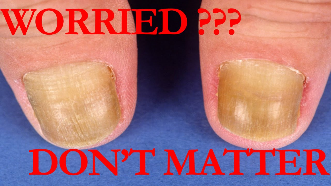 Why yellow nails DON\'T MATTER / Don\'t whiten your nails How to Get ...