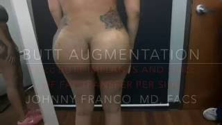 Biggest Butt In Texas, 712cc Butt Implants Video showing 1 Week Results