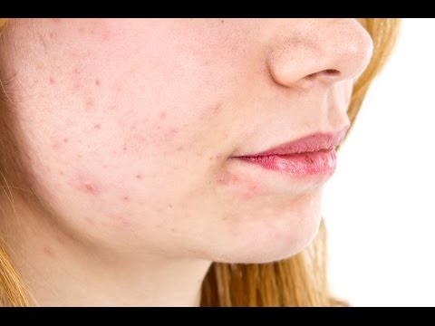 how to cure adult acne