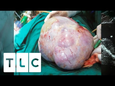 The World's Biggest Cyst | Body Bizarre