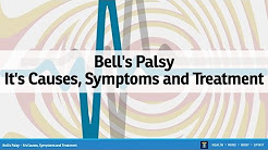 Bell's Palsy - It's Causes, Symptoms and Treatment