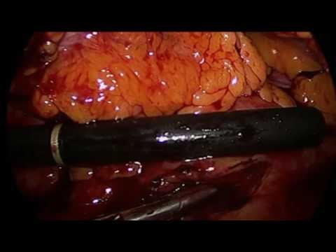 Некроз поджелудочной железы. Насколько опасна эта ситуация?