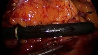 Laparoscopic Pancreatic Debridement: Tough Location