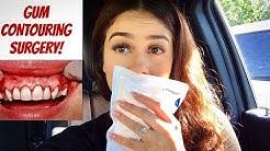 Gum Contouring Surgery/Procedure Vlog   My Experience